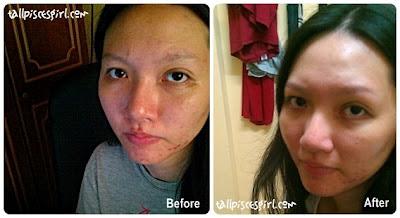 cellnique before after | Facial Review @ Cellnique, Taman Segar