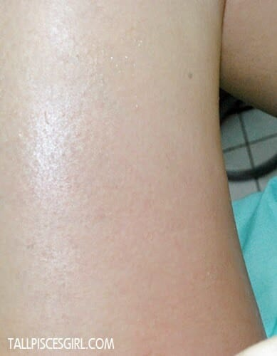 Mild redness after VelaShape treatment