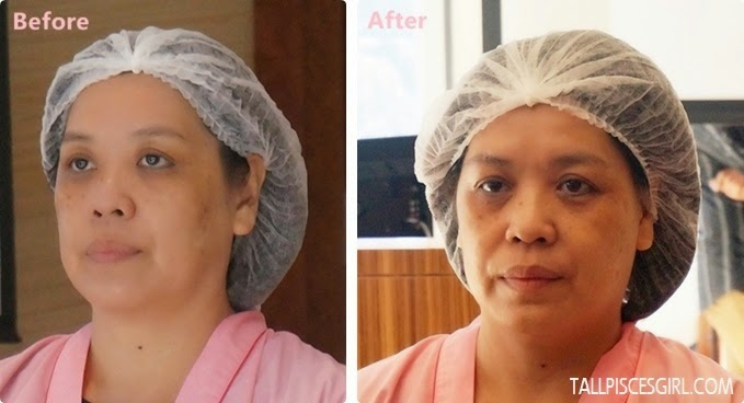 Live demo before/after Indiba Stem Cell Treatment Pigmentation spots lightened and an even skin tone after just one session!