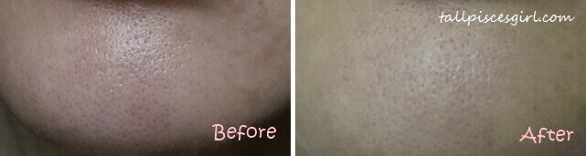 Before & After b.liv Deep Impact