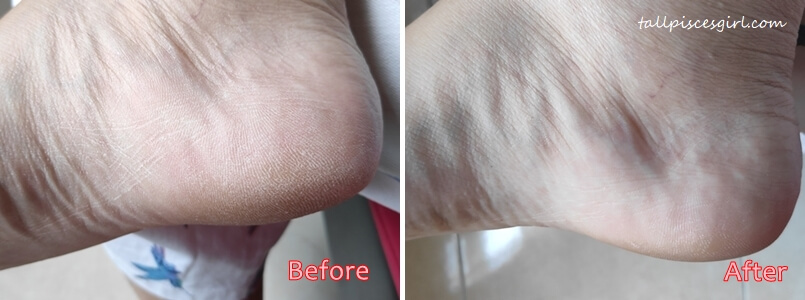 Before & After Using Freeman Bare Foot Products